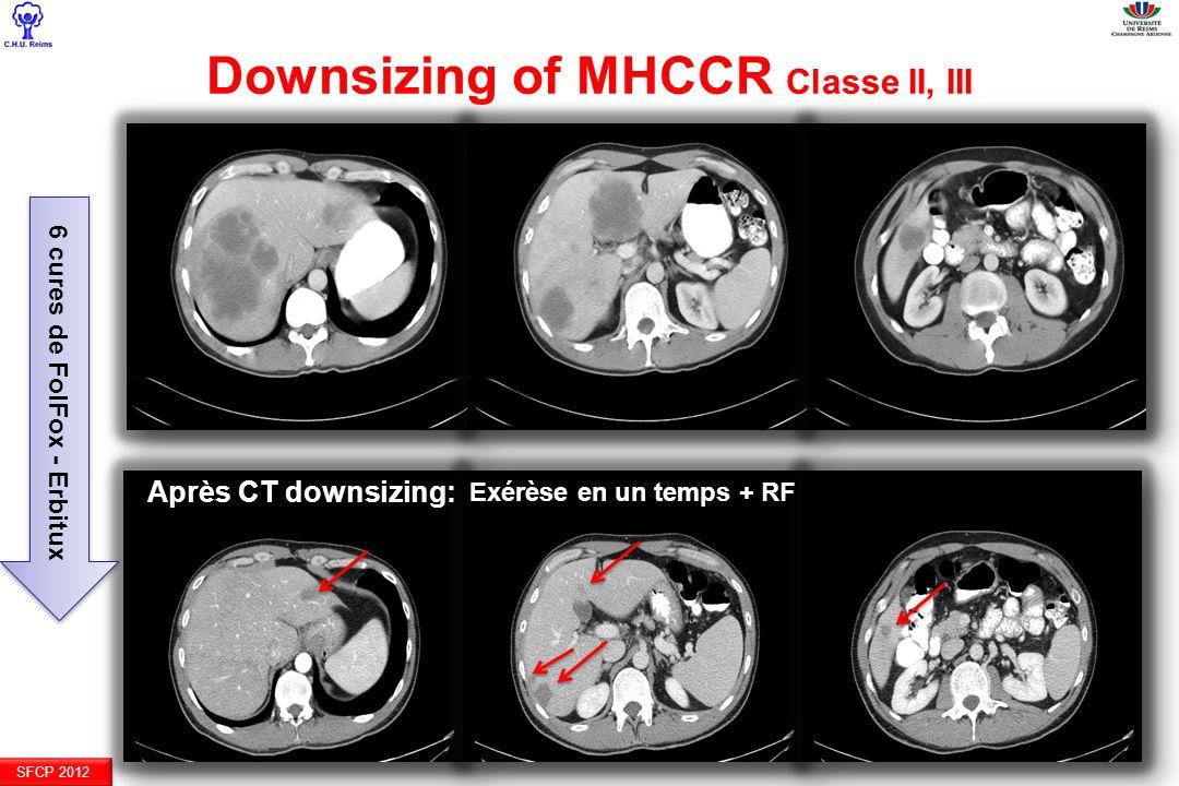 Downsizing of MHCCR Classe II, III