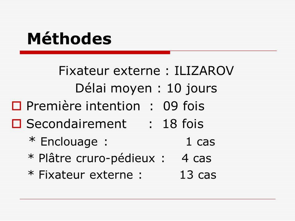 Fixateur externe : ILIZAROV