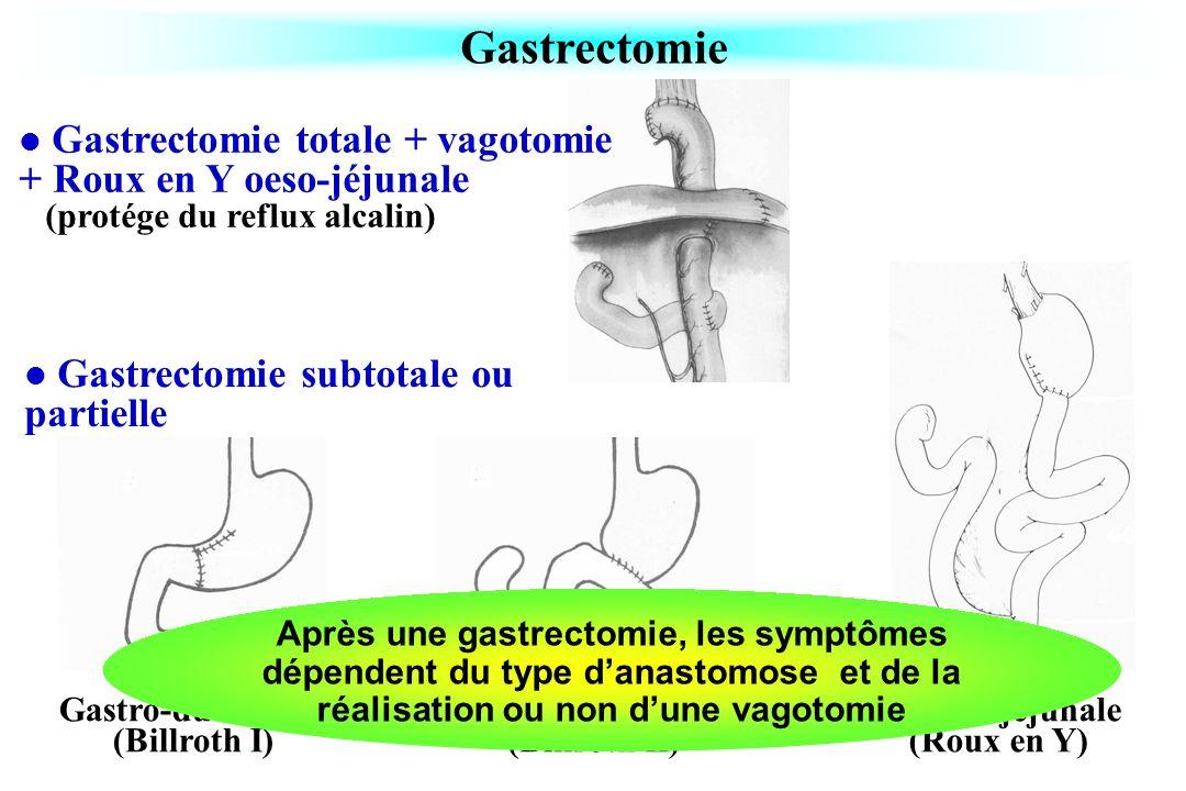 Gastrectomie Gastrectomie totale + vagotomie + Roux en Y oeso-jéjunale