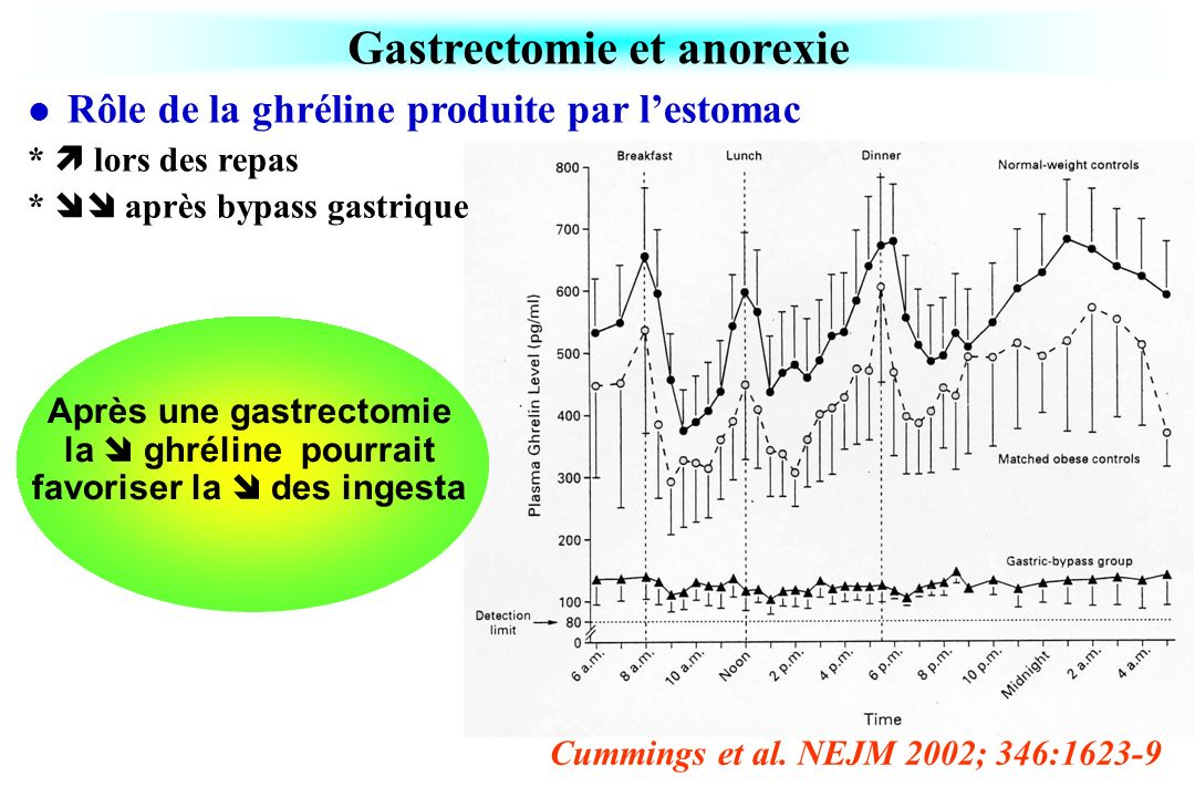 Gastrectomie et anorexie