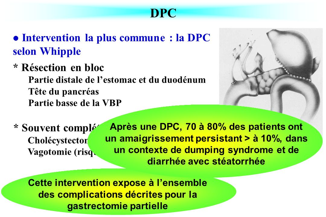 DPC Intervention la plus commune : la DPC selon Whipple