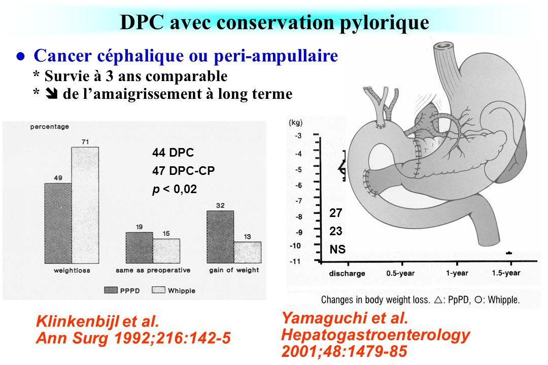 DPC avec conservation pylorique