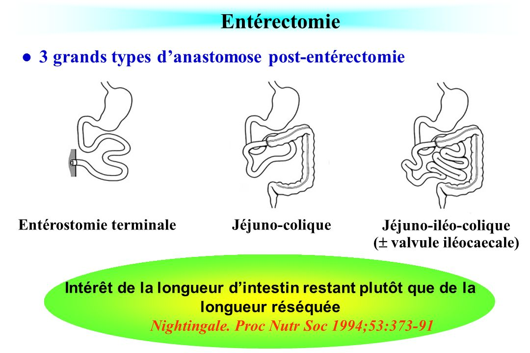 Entérectomie 3 grands types d'anastomose post-entérectomie