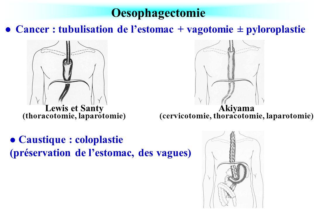 Oesophagectomie Cancer : tubulisation de l'estomac + vagotomie ± pyloroplastie. Lewis et Santy (thoracotomie, laparotomie)