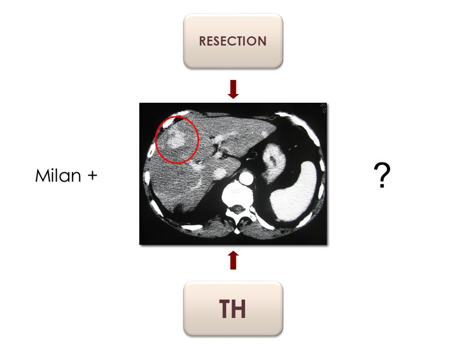 RESECTION Milan + TH