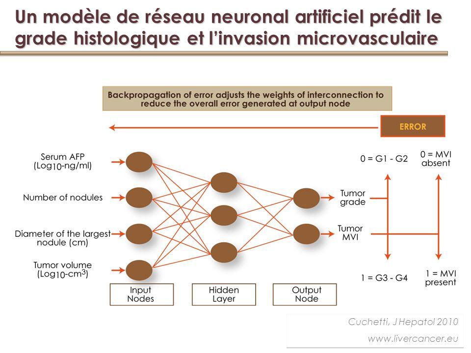 Un modèle de réseau neuronal artificiel prédit le grade histologique et l'invasion microvasculaire