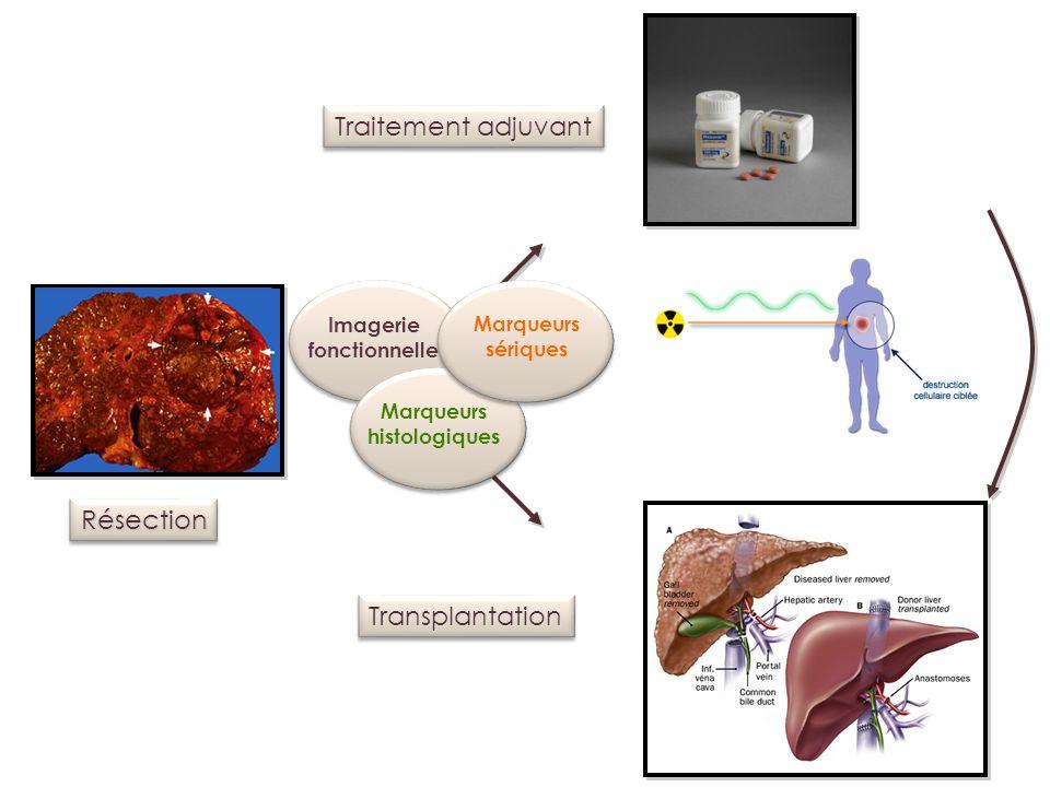 Traitement adjuvant Résection Transplantation Imagerie Marqueurs