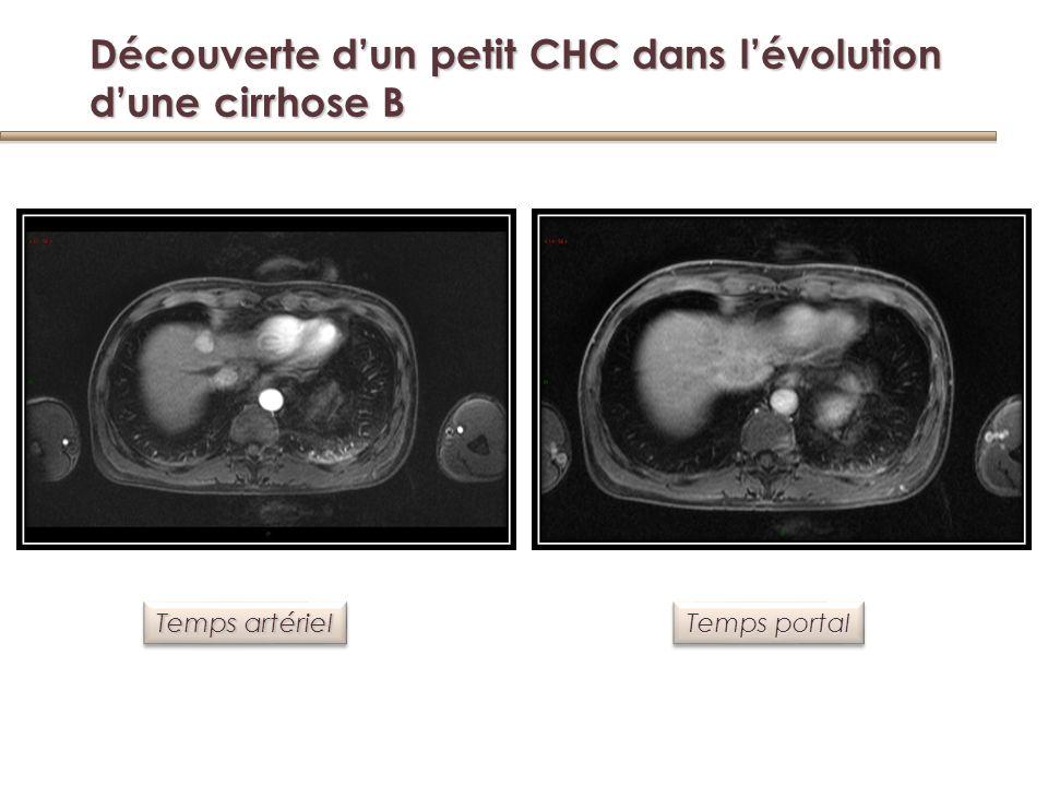 Découverte d'un petit CHC dans l'évolution d'une cirrhose B