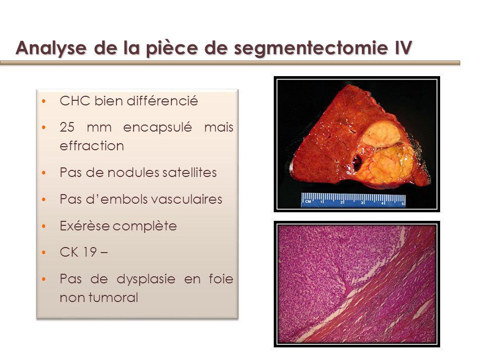 Analyse de la pièce de segmentectomie IV