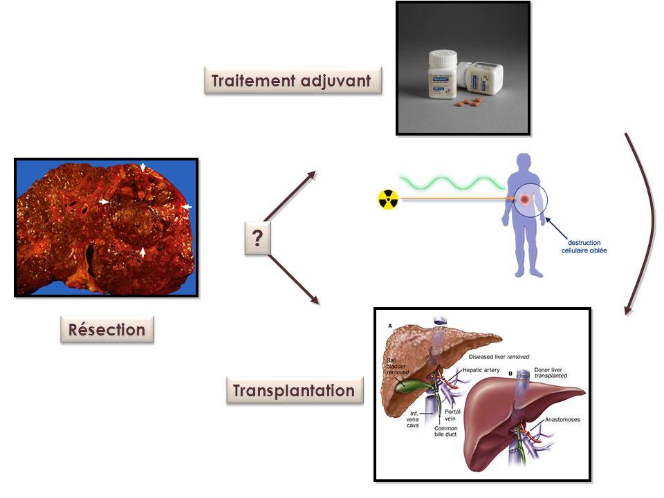 Traitement adjuvant Résection Transplantation