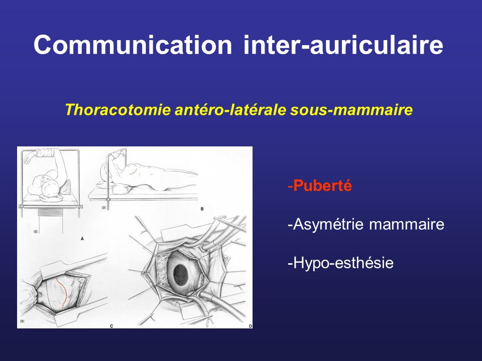 Communication inter-auriculaire