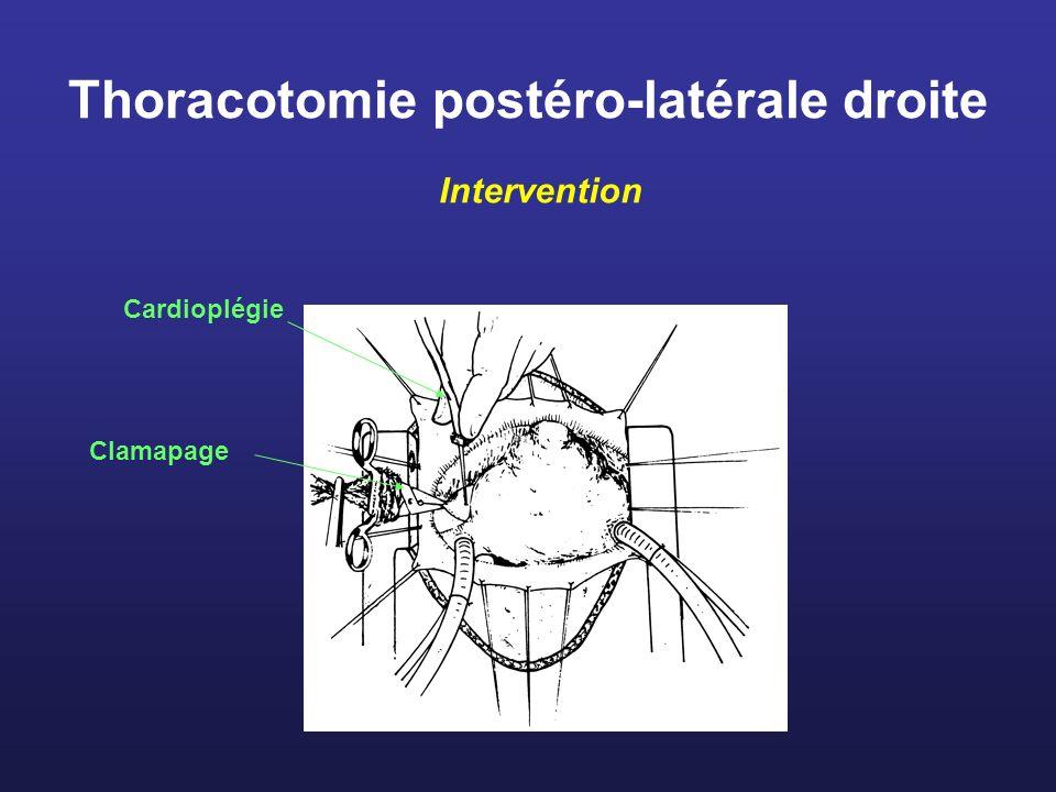 Thoracotomie postéro-latérale droite