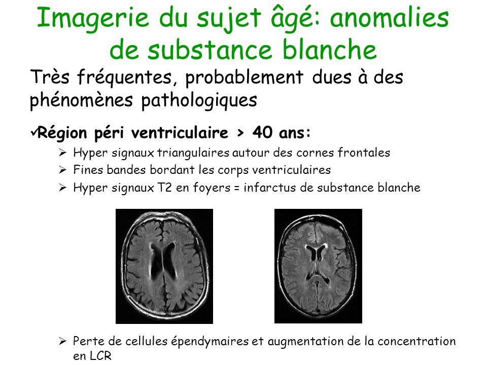 Imagerie du sujet âgé: anomalies de substance blanche
