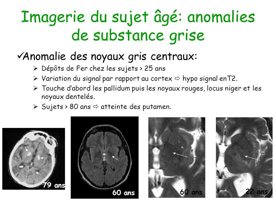 Imagerie du sujet âgé: anomalies de substance grise