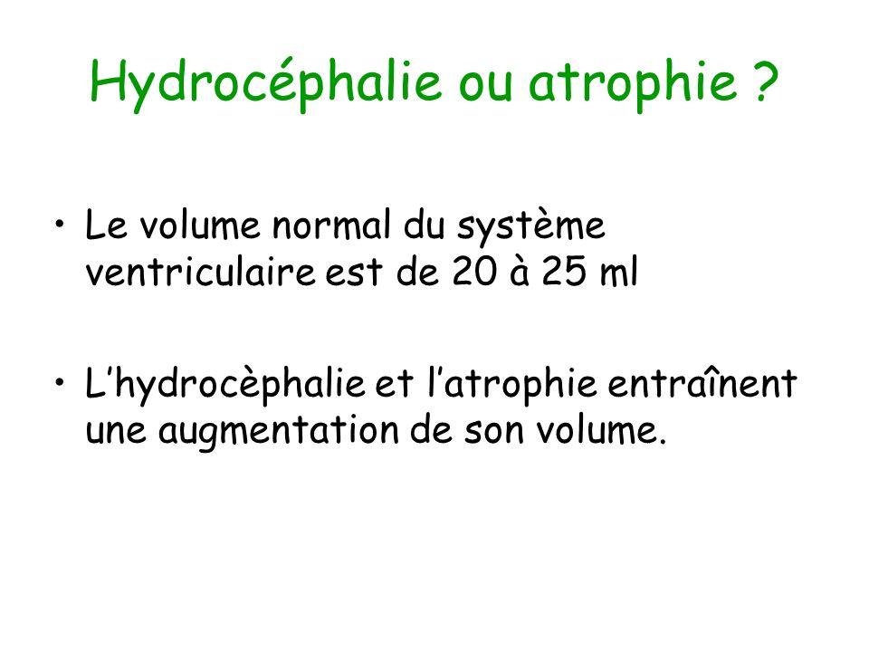 Hydrocéphalie ou atrophie
