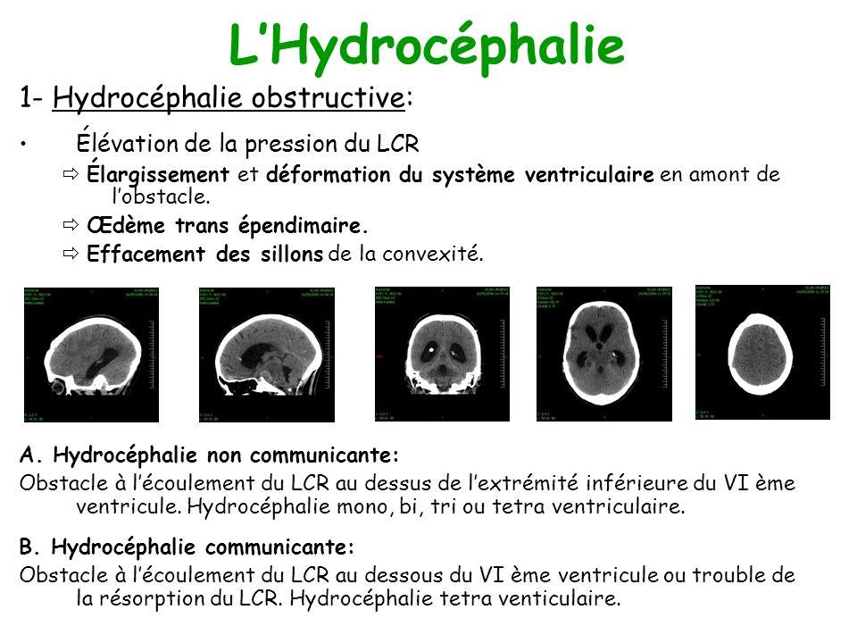 L'Hydrocéphalie 1- Hydrocéphalie obstructive: