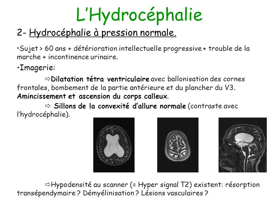 L'Hydrocéphalie 2- Hydrocéphalie à pression normale. Imagerie: