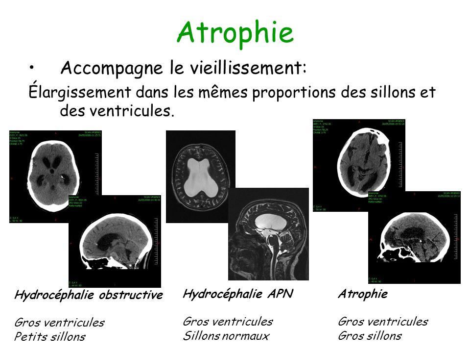 Atrophie Accompagne le vieillissement: