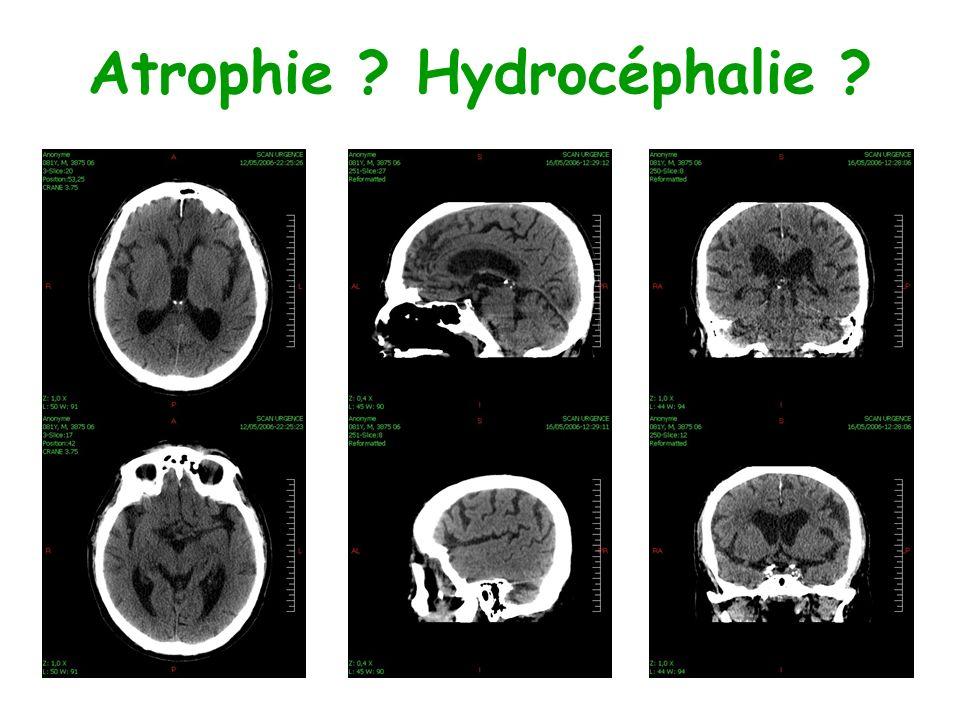 Atrophie Hydrocéphalie