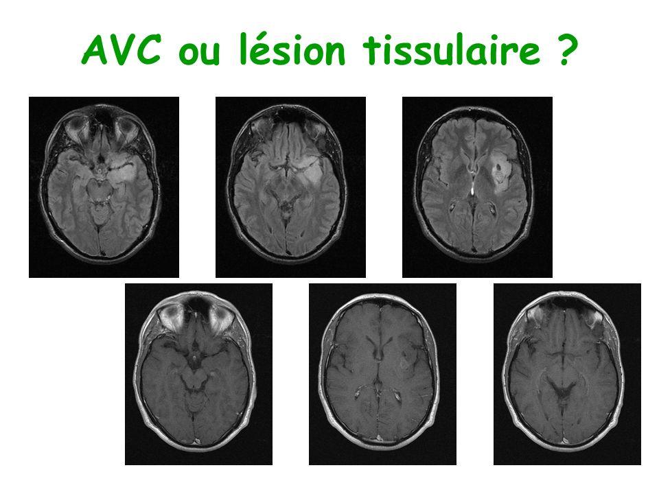 AVC ou lésion tissulaire