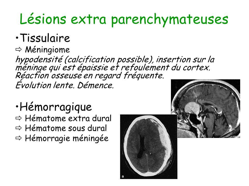 Lésions extra parenchymateuses