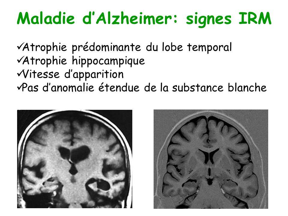 Maladie d'Alzheimer: signes IRM