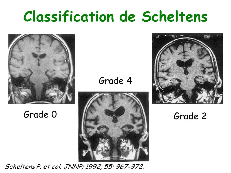 Classification de Scheltens