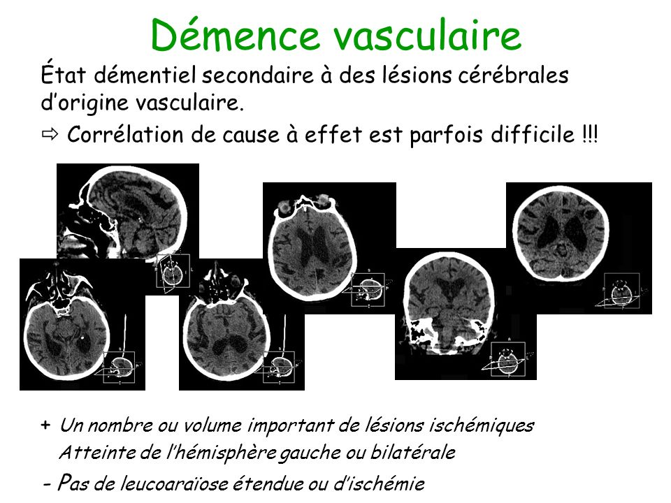 Démence vasculaire État démentiel secondaire à des lésions cérébrales d'origine vasculaire.  Corrélation de cause à effet est parfois difficile !!!