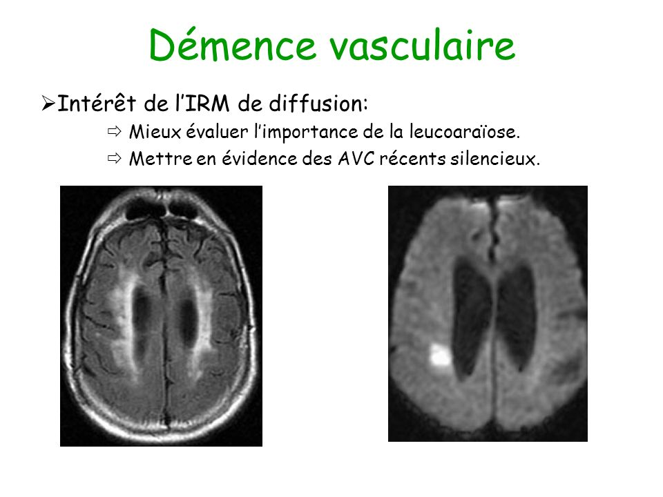 Démence vasculaire Intérêt de l'IRM de diffusion: