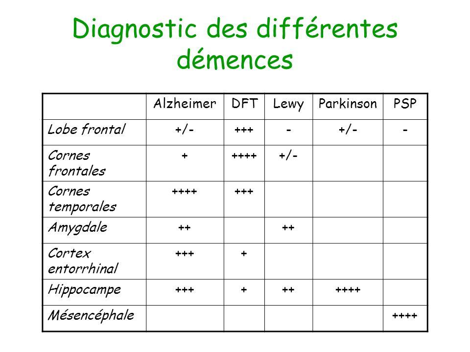 Diagnostic des différentes démences