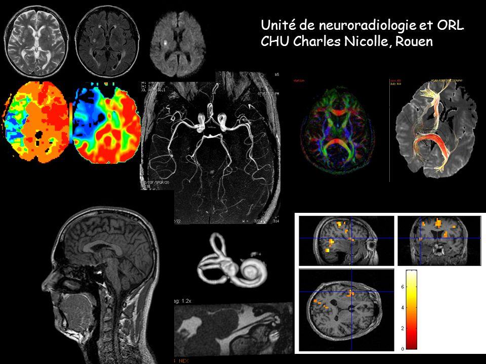 Unité de neuroradiologie et ORL