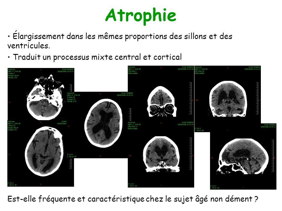 Atrophie Élargissement dans les mêmes proportions des sillons et des ventricules. Traduit un processus mixte central et cortical.