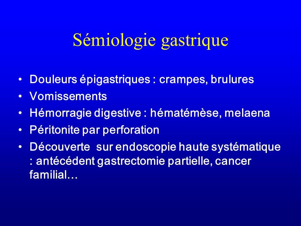 Sémiologie gastrique Douleurs épigastriques : crampes, brulures