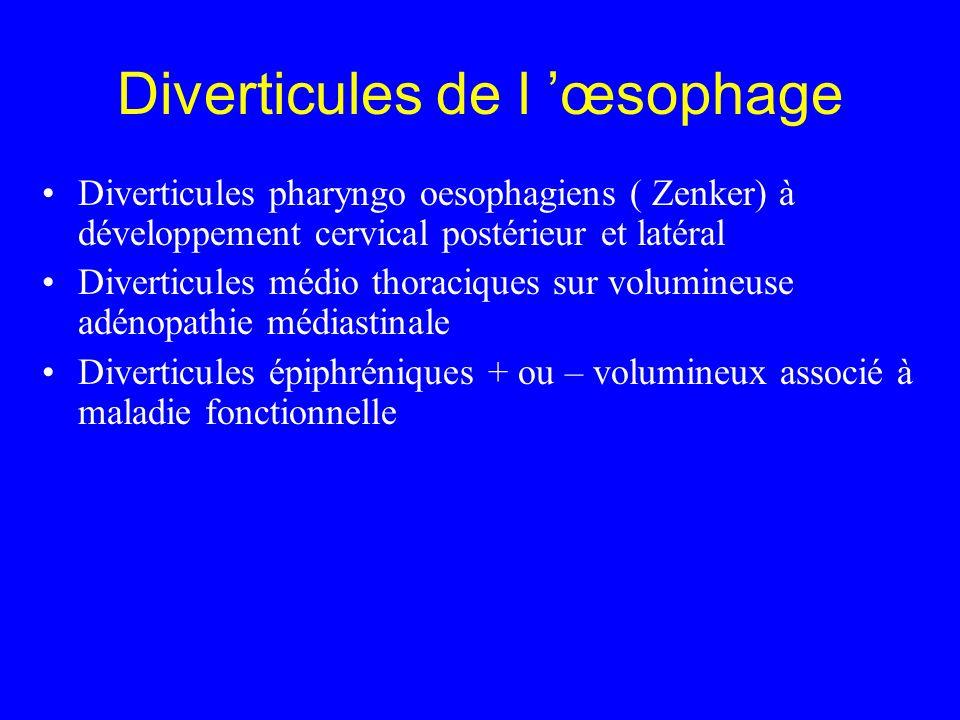 Diverticules de l 'œsophage