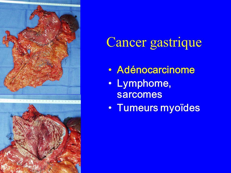 Cancer gastrique Adénocarcinome Lymphome, sarcomes Tumeurs myoïdes