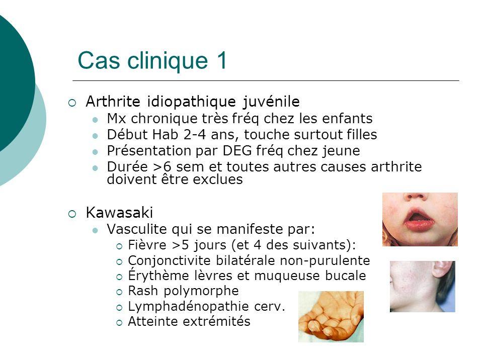 Cas clinique 1 Arthrite idiopathique juvénile Kawasaki