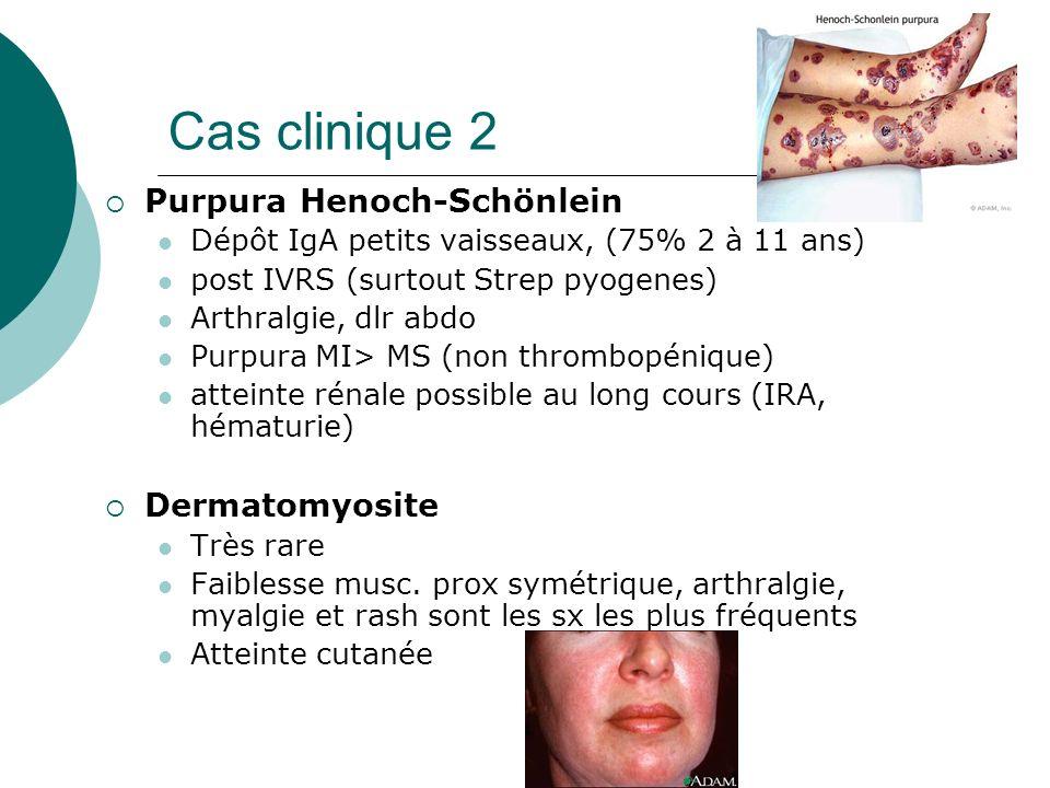 Cas clinique 2 Purpura Henoch-Schönlein Dermatomyosite