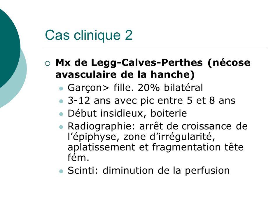Cas clinique 2 Mx de Legg-Calves-Perthes (nécose avasculaire de la hanche) Garçon> fille. 20% bilatéral.