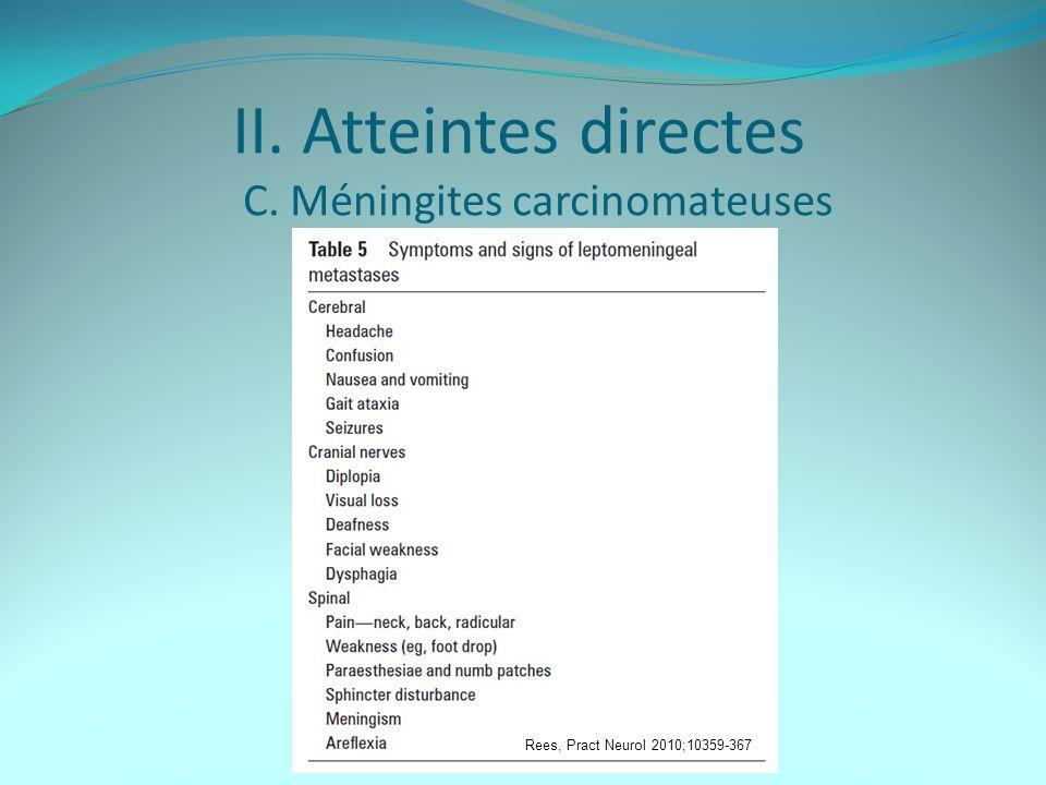 II. Atteintes directes C. Méningites carcinomateuses