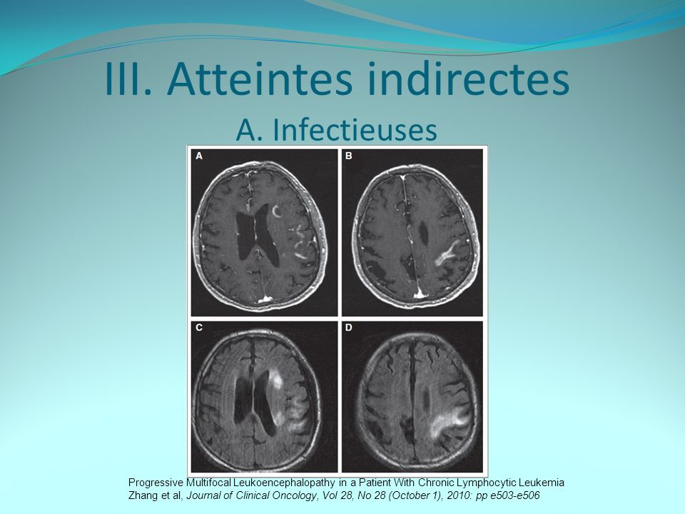 III. Atteintes indirectes A. Infectieuses
