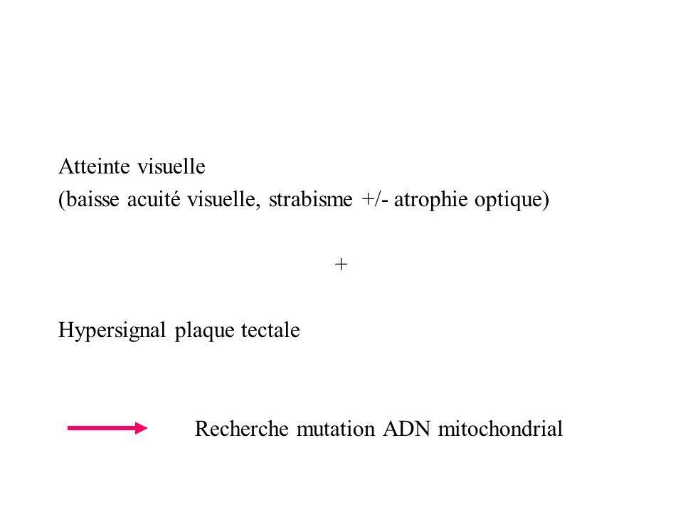 Atteinte visuelle (baisse acuité visuelle, strabisme +/- atrophie optique) + Hypersignal plaque tectale.