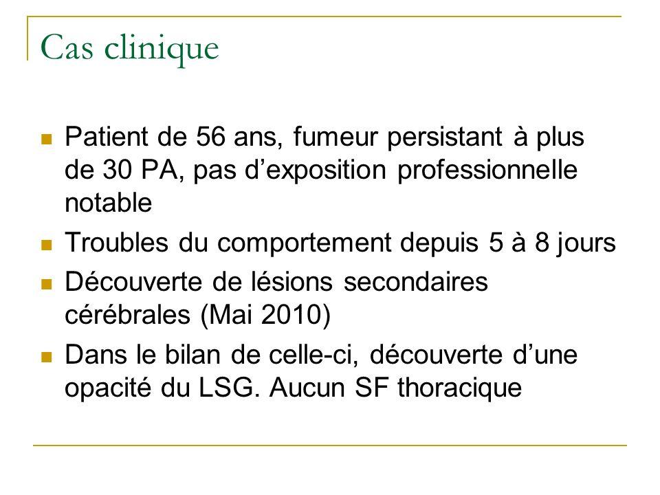 Cas clinique Patient de 56 ans, fumeur persistant à plus de 30 PA, pas d'exposition professionnelle notable.