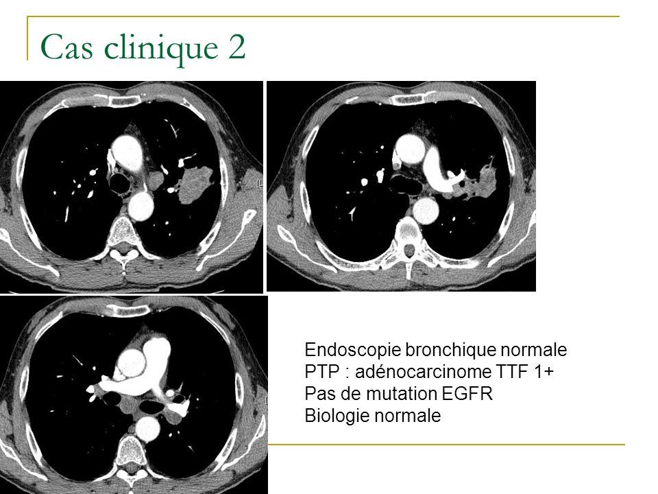 Cas clinique 2 Endoscopie bronchique normale