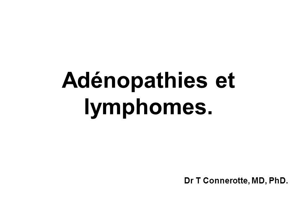 Adénopathies et lymphomes.