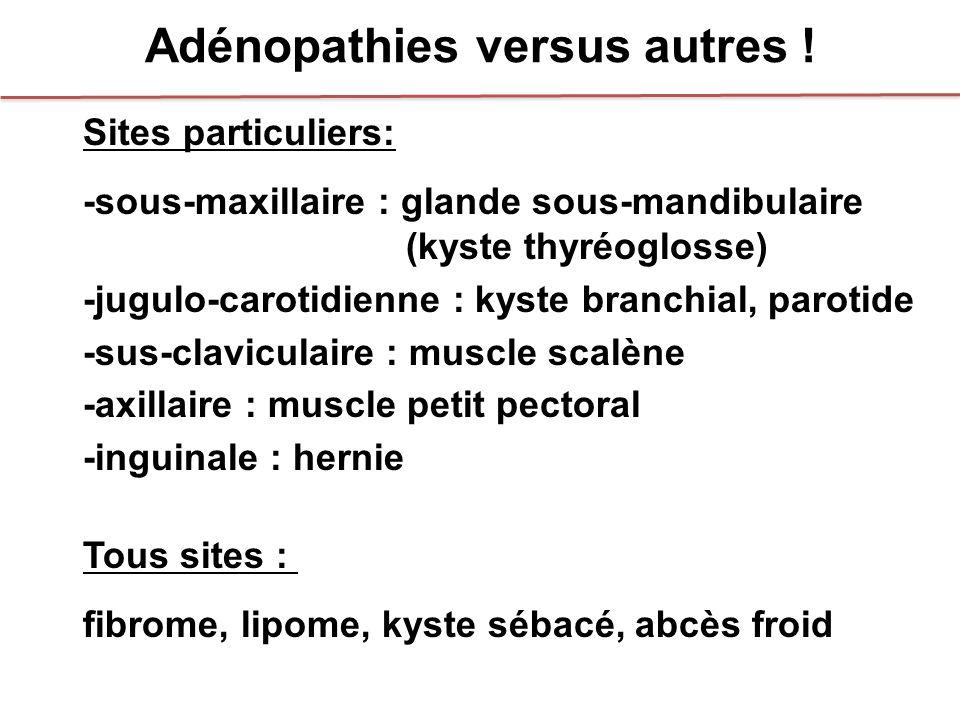 Adénopathies versus autres !