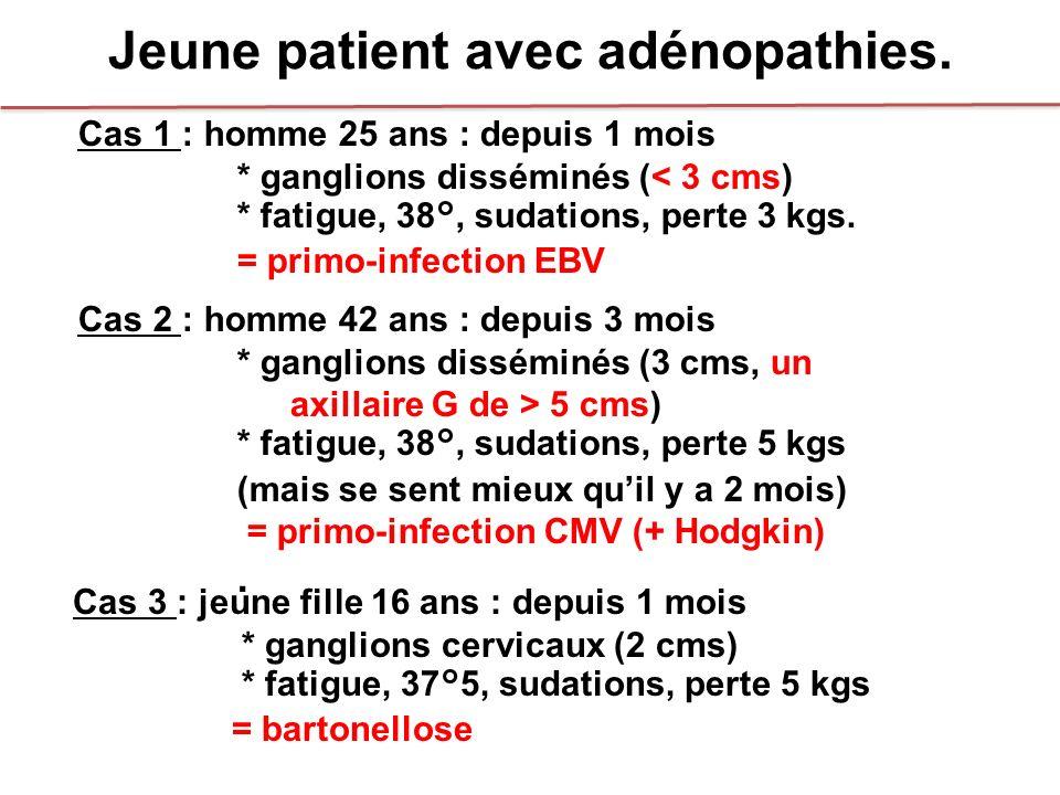 Jeune patient avec adénopathies.
