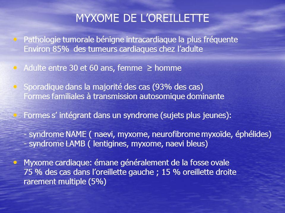 MYXOME DE L'OREILLETTE