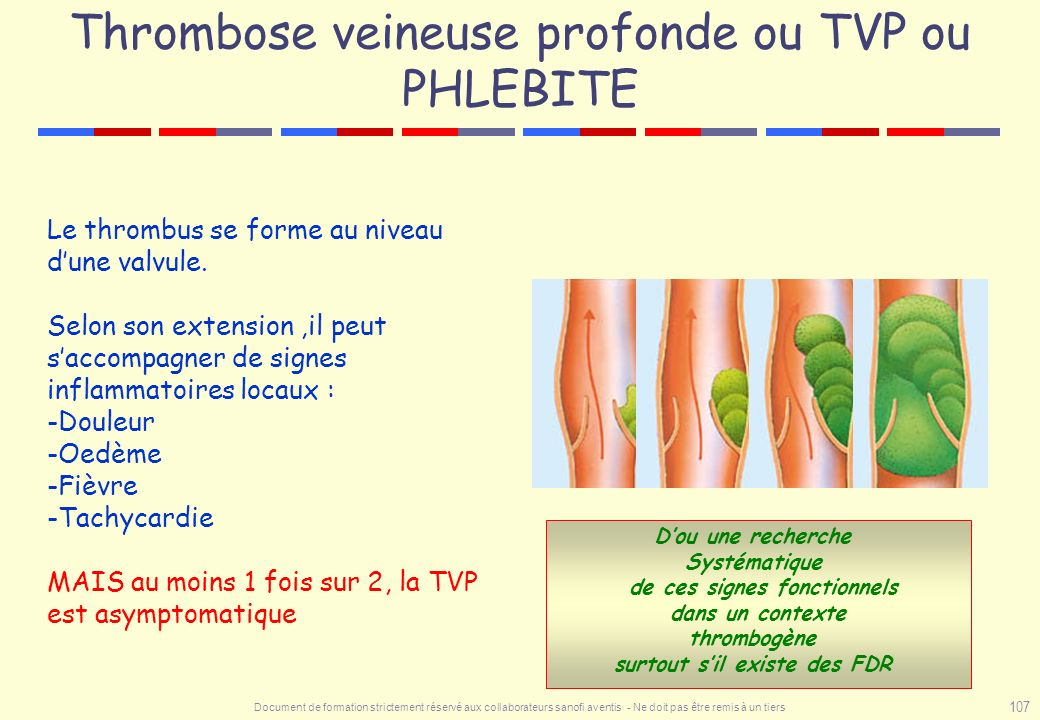 Thrombose veineuse profonde ou TVP ou PHLEBITE