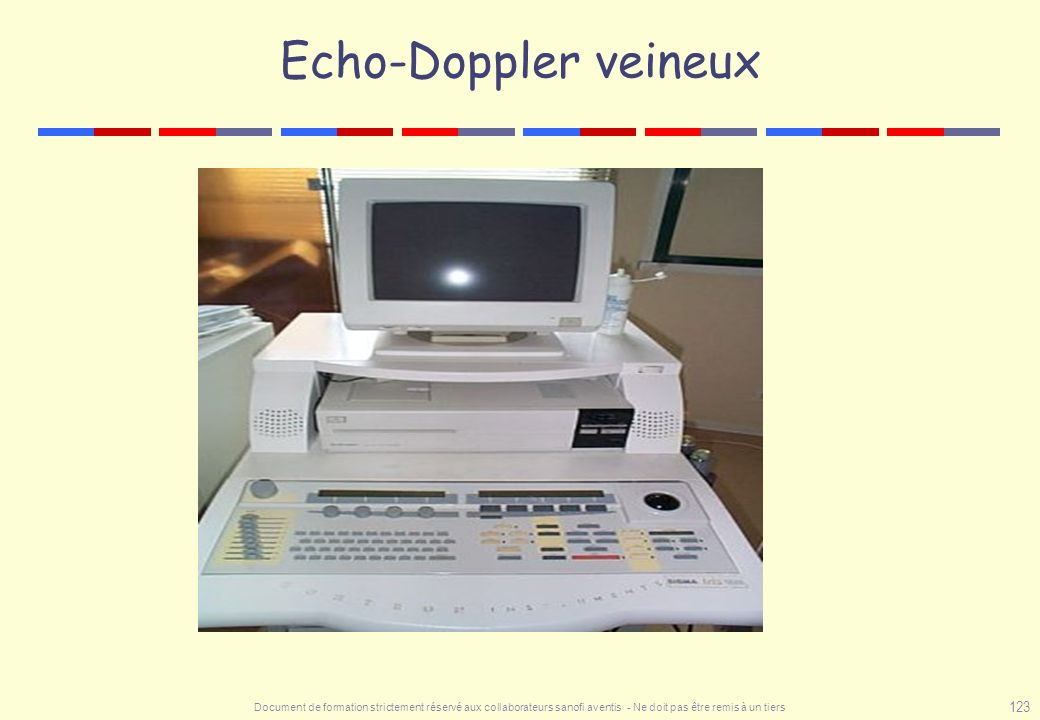 Echo-Doppler veineux