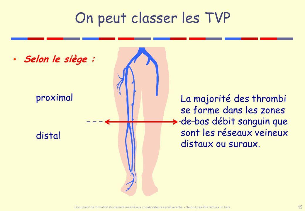 On peut classer les TVP Selon le siège : proximal distal
